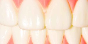 IMPORTANCE OF MARKETING FOR DENTISTS